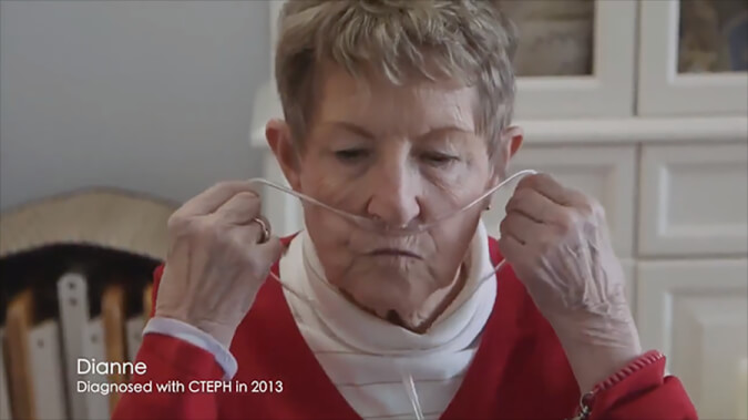 Photo of Dianne Curle, a CTEPH patient